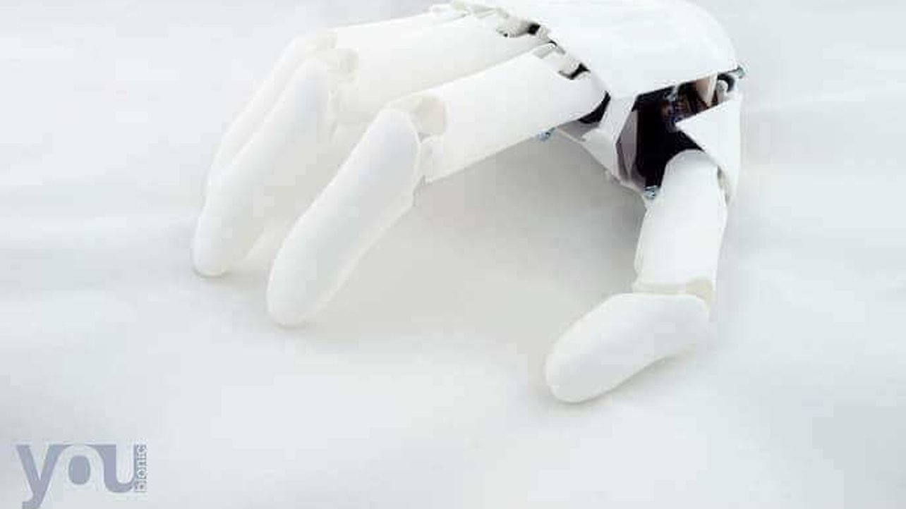 Featured image of New Youbionic Prosthetic Costs Only €1,200
