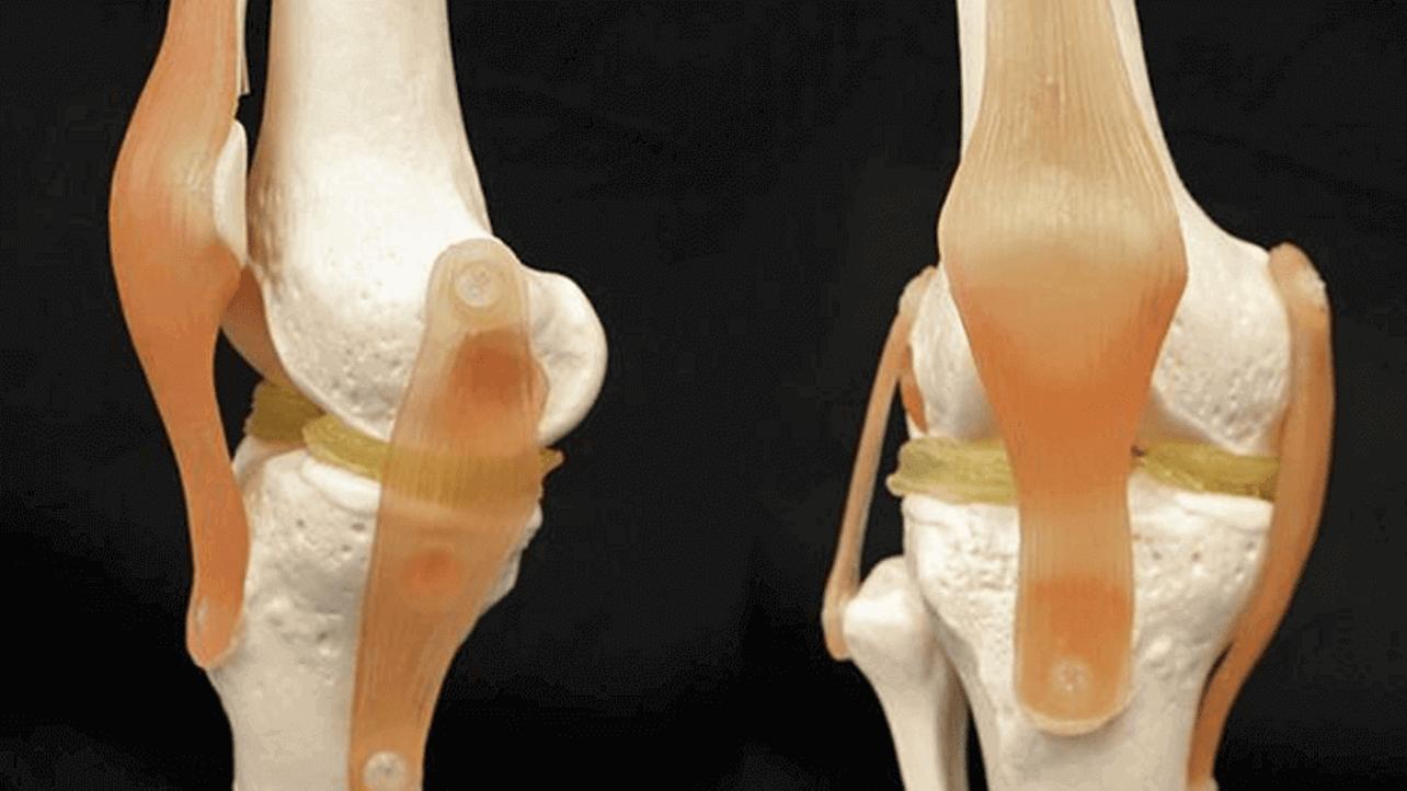 Featured image of Duke University Develops 3D Printable Hydrogel for Menisci Implants