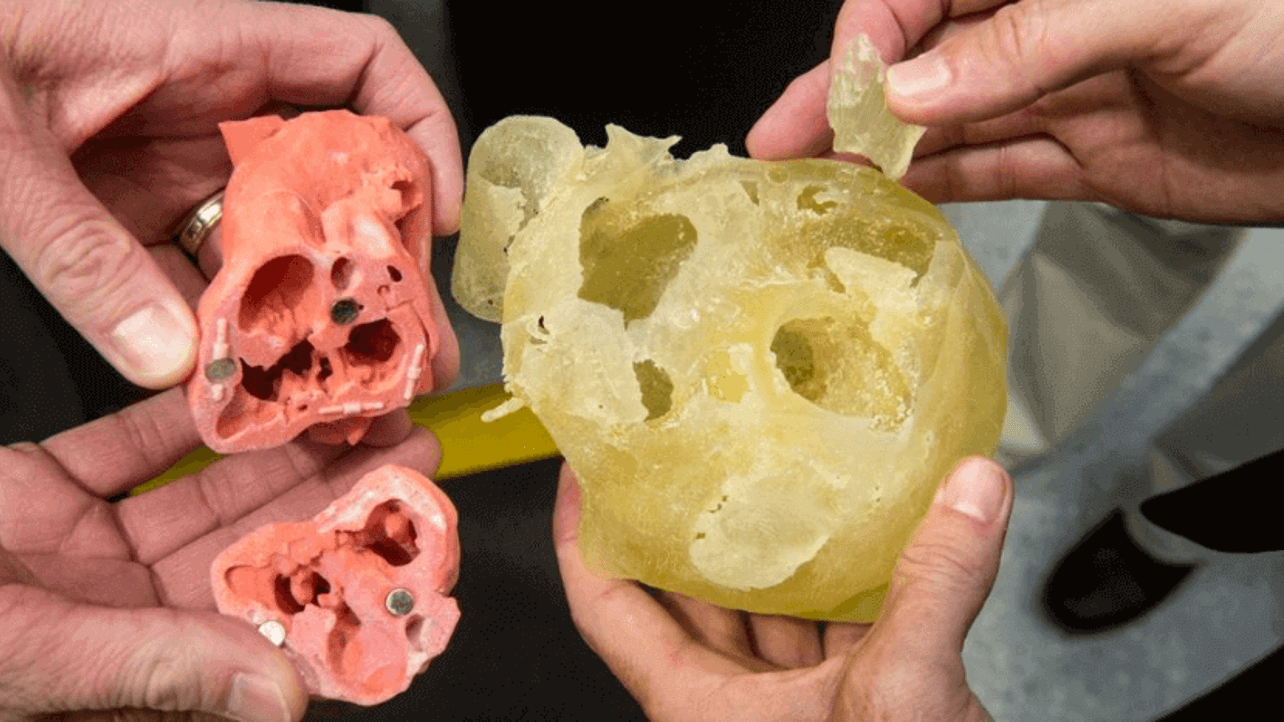Featured image of Caterpillar Collaborates With Surgeons to Print Heart Models