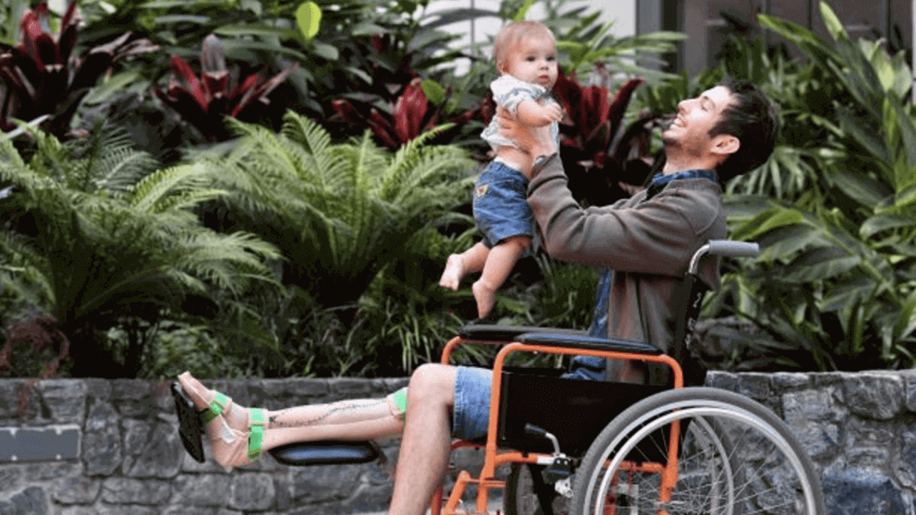 Featured image of Australian Dad Has World's First 3D Printed Shinbone Transplant