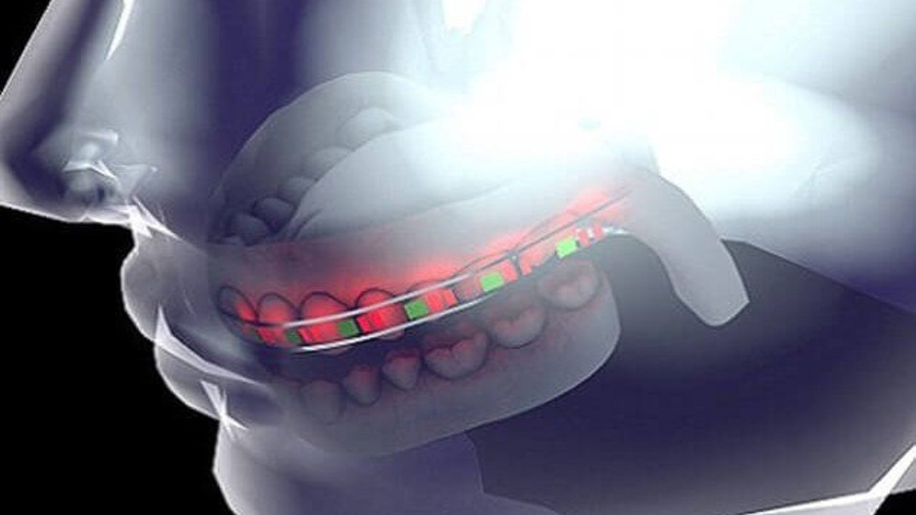 Featured image of 3D Printed Braces with LED Lights and Micro Batteries Save Time and Money