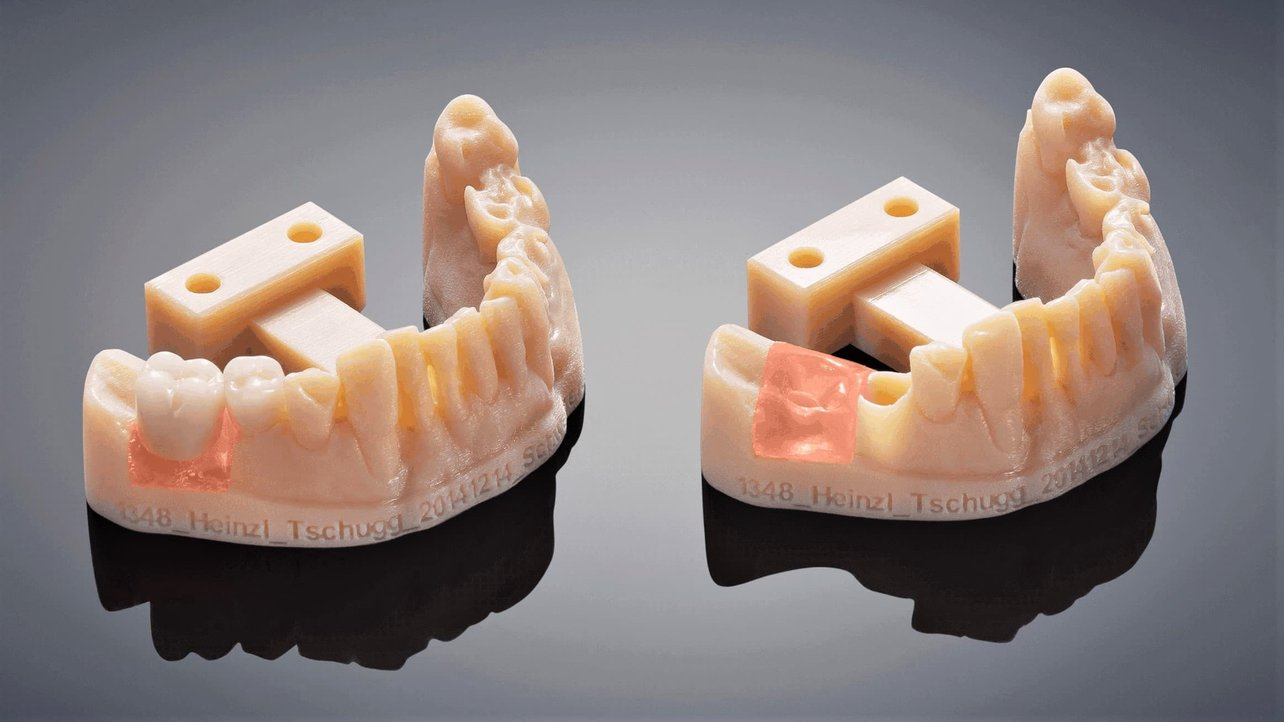 Featured image of 2021 Dental 3D Printing Guide: All You Need to Know