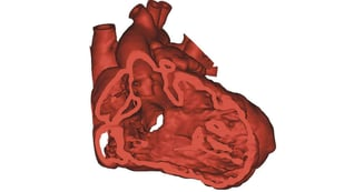 Featured image of Surgeons 3d-print heart to save a childs life
