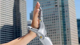 Featured image of 3D Printed Prosthetics: Cheaper, Better, More Versatile