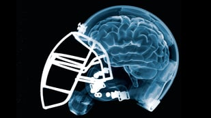 Featured image of NFL backs 3D Printed Helmet Material to Reduce Brain Injuries