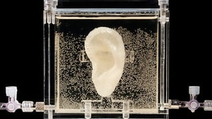 Featured image of 3D Bioprinting the Lost Ear of Vincent van Gogh