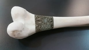 Featured image of Doctors Plan to 3D Print Bone Implants Mid-Surgery