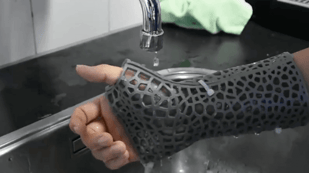 Featured image of 3D Printed Orthopedic Casts Offer Custom Thermal-Comfort Design