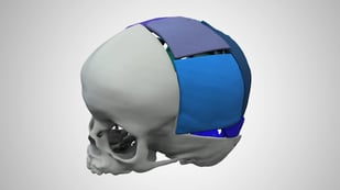 Featured image of 3D Systems Partners With Stryker To Launch Virtual Surgical Planning Service