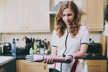 Kate Grey, who lost her hand at 2 years old, with her Hero Arm.