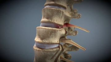 A model of a spinal injury.