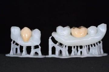 Dental models printed in resin.