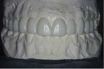 A dental restoration.