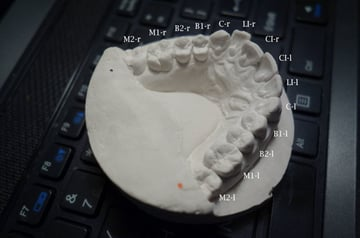 Mold of Amos Dudley's teeth