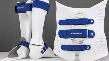 Andiamo utilizes 3D scanning and printing to deliver an effective device within two weeks