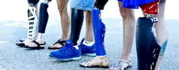 Unyq is a company that looks to make prosthetics personal and normalized