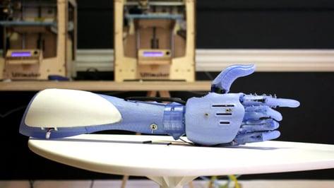 Featured image of Reddit begins crowdsourcing next generation bionics