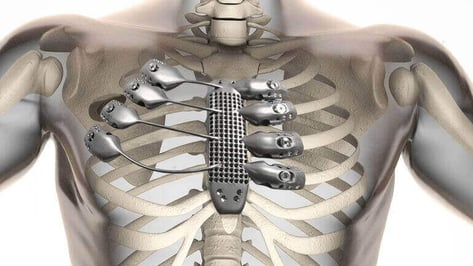 Featured image of World First: Cancer Patient receives 3D Printed Sternum