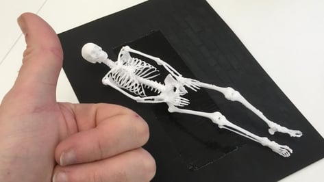 Featured image of Programmer 3D Prints own Skeleton to Help Cope with Cancer