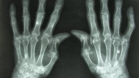 Featured image of 3D Printing Living Tissue Could Heal Damaged Joints and Eliminate Arthritis