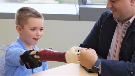 Featured image of 3D Printed Prosthetic Hand – 5 Most Promising Projects 2019