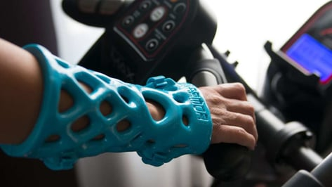 Featured image of 3D Printed Cast: The Most Promising Projects