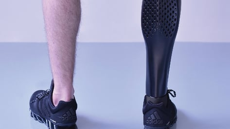 Featured image of 3D Printed Prosthetic Leg – 5 Most Promising Projects in 2019