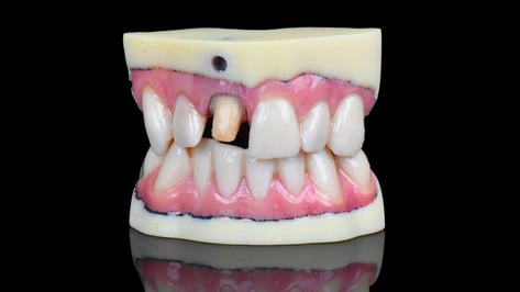 Featured image of Stratasys Unveils High Resolution J720 Dental 3D Printer