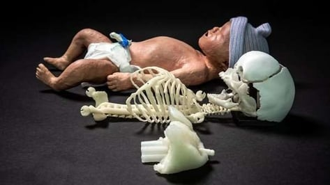 Featured image of 3D Printed Newborn Baby Manikin Improves Resuscitation Training