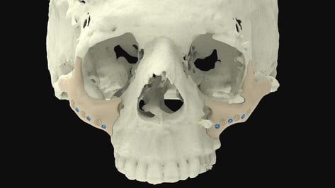 Featured image of 3D Printed Bones: The Most Jaw-Dropping Projects