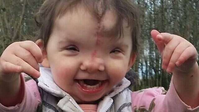 Featured image of How 3D printing reshaped one toddler's face