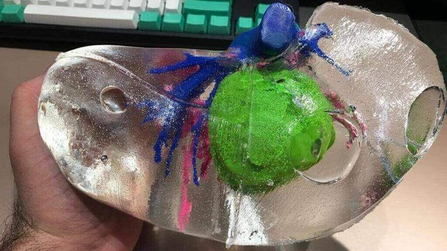 Featured image of Multi-Colored 3D Printed Livers Help Doctors Prepare for Tumor Surgery