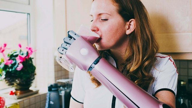 "Featured image of Open Bionics Releases Incredibly Affordable and Customizable ""Hero Arm"" Prosthetic"