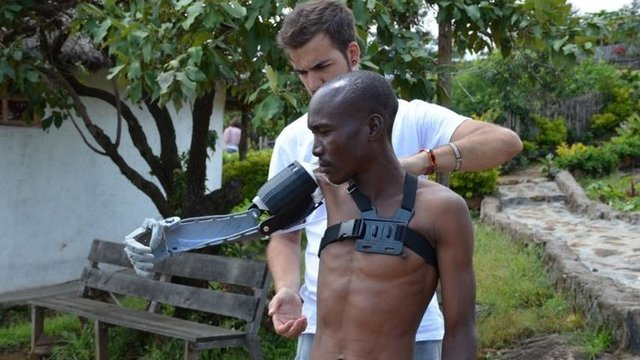 Featured image of 24-Year-Old Engineer is 3D Printing Prosthetics for People in Poor Countries