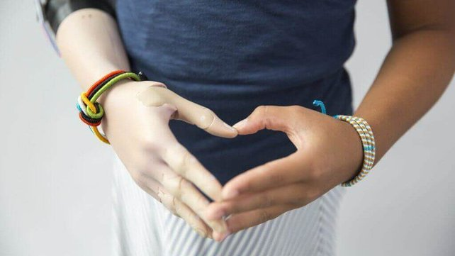 Featured image of Unlimited Tomorrow CEO Creates Lifelike 3D Printed Hand for Young Momo