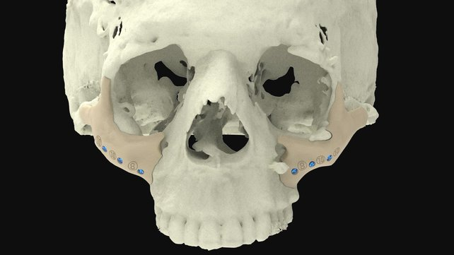 Featured image of 3D Printed Bones: The Most Jaw-Dropping Projects in 2020