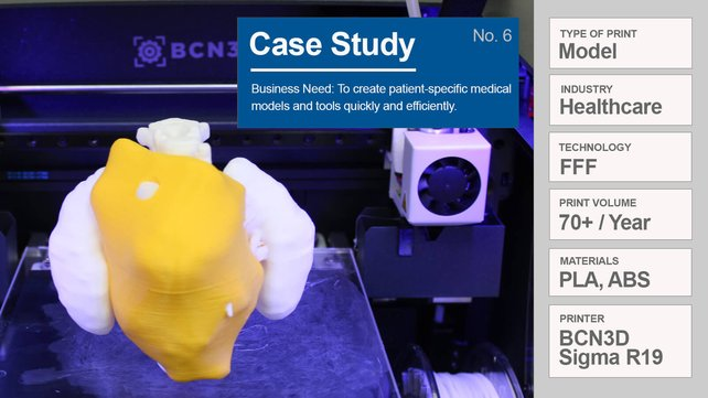 Featured image of Case Study: Why Hospitals Need 3D Printers