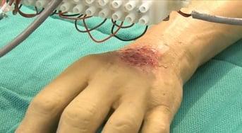 A skin bioprinter prints directly onto a model burn victim
