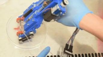 The University of Toronto's handheld Bioprinter prints strips of human skin