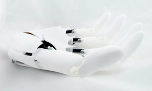 The final goal of BIonic is to use 3D printing create a bionic prosthesis which also looks great (image: Youbionic)