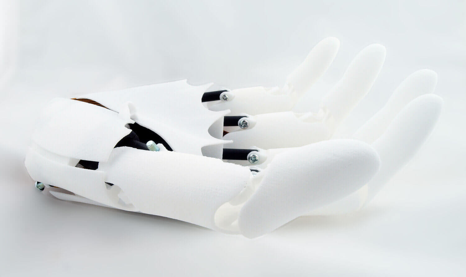 3D Printed Prosthetics made with Laser Sintering | All3DP