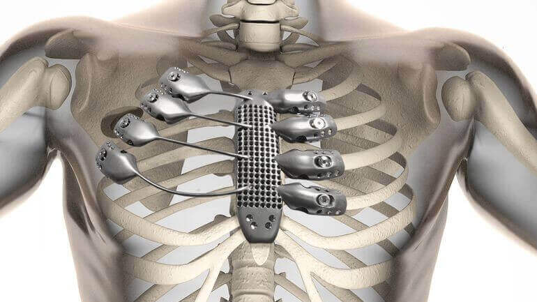 World First: Cancer Patient receives 3D Printed Sternum | All3DP