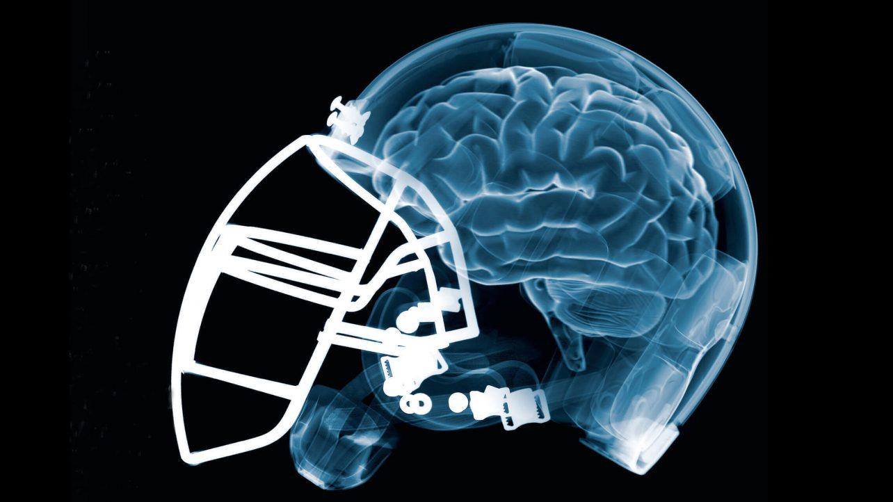Featured image of NFL backs 3D Printed Helmet Material to Reduce Brain  Injuries d99ff35c3