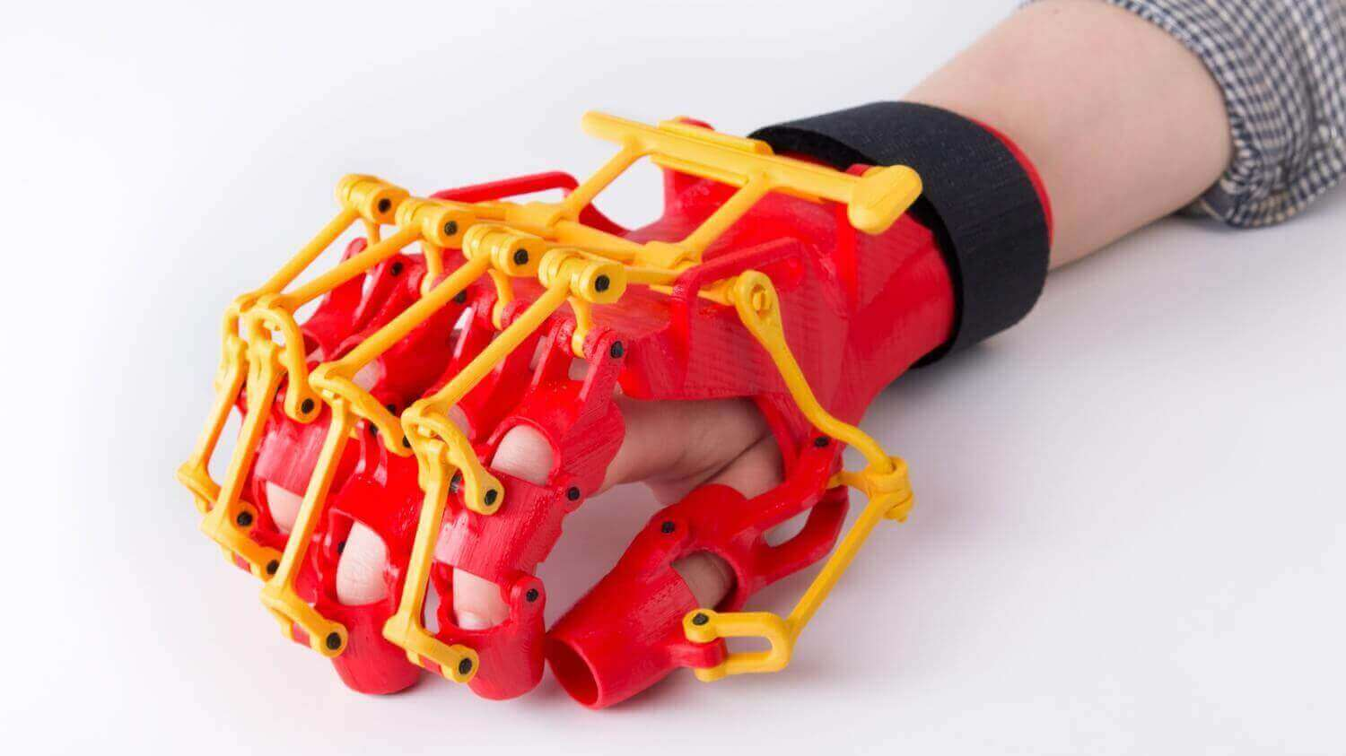 3D Printed Rehabilitation Orthosis by ZMorph | All3DP