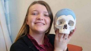 Featured image of Woman Receives 3D Printed Skull Implant After Brain Tumor Removal