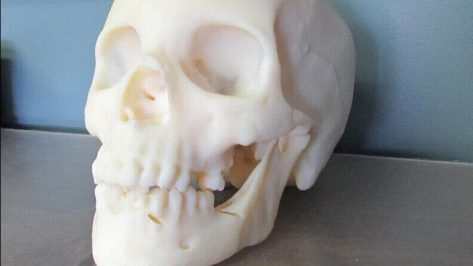 Featured image of 3D Printing Used to Reproduce a Murder Victim's Skull in a Cold Case
