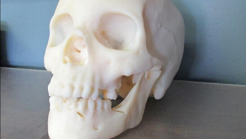 3D Printing Used to Reproduce a Murder Victim's Skull in a Cold Case | All3DP
