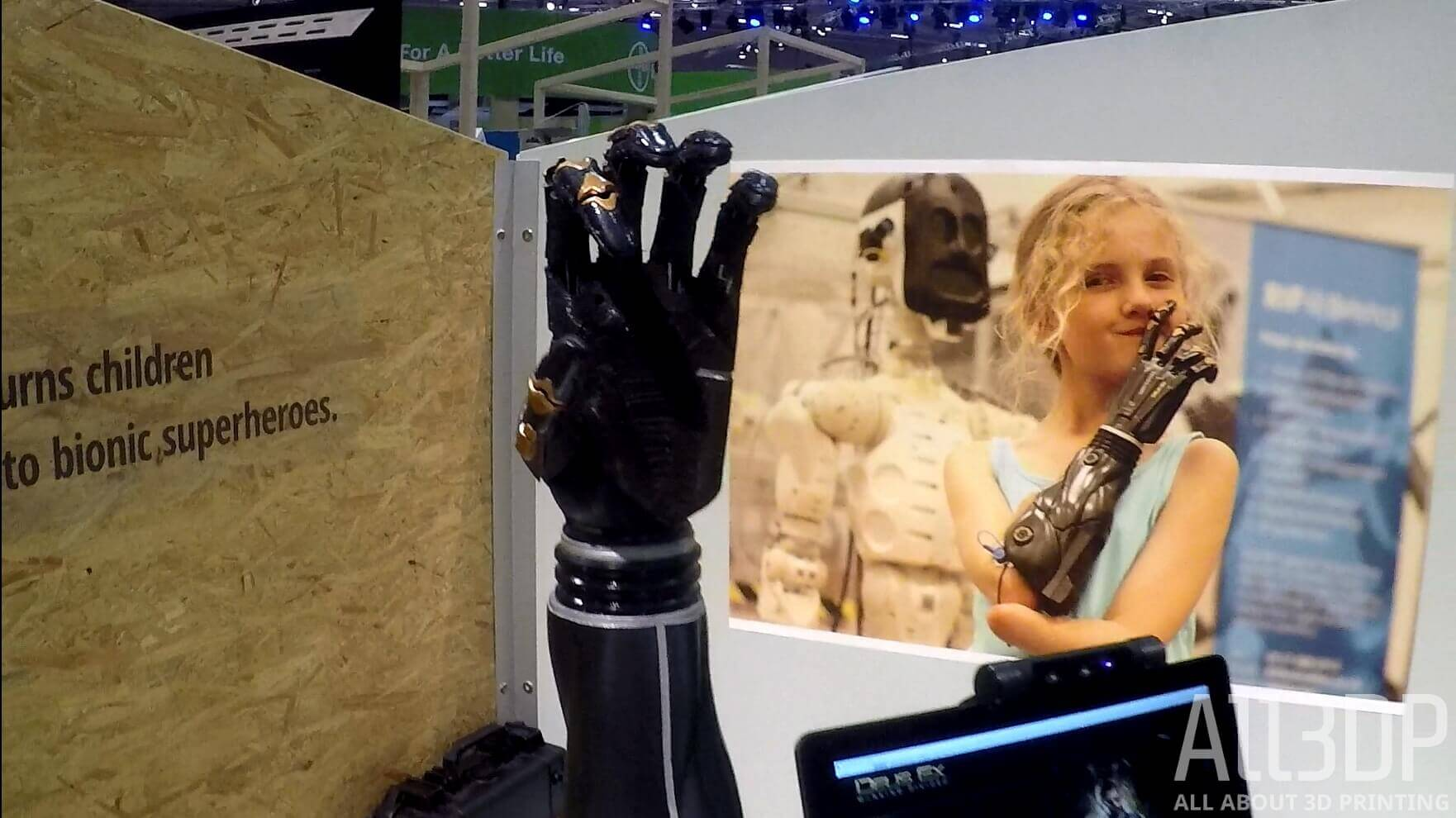 Open Bionics Samantha Payne Helps Disabled Kids Become Superheroes | All3DP