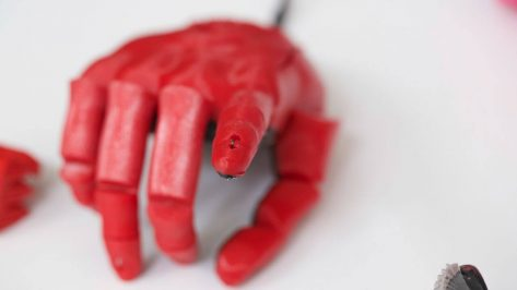 Featured image of Open Bionics Begins World First Bionic Hand Trial in Bristol