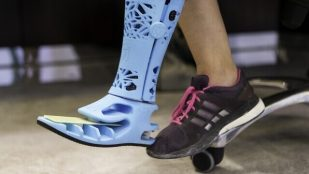 Featured image of This is the First 3D Printed Prosthetic Leg in the UAE